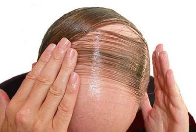 اطلاعاتی درباره ریزش مو یا آلوپسی