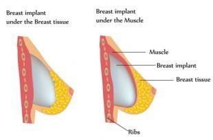 دانستی ها پیش از پروتز سینه