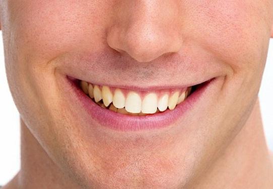 1_روش_سفید_کردن_رنگ_دندان_در_فتوشاپ