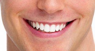 6 روش سفید کردن رنگ دندان در فتوشاپ 310x165 - آموزش سفید کردن دندان در فتوشاپ
