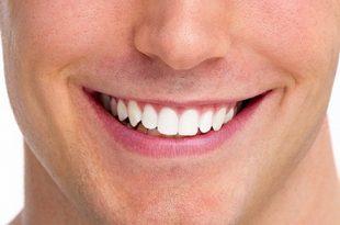 6 روش سفید کردن رنگ دندان در فتوشاپ 310x205 - آموزش سفید کردن دندان در فتوشاپ