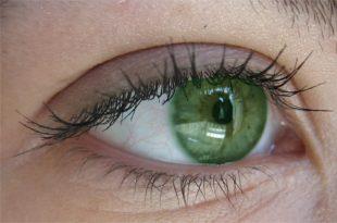 7 آموزش تغییر رنگ چشم کمتر از یک دقیقه با فتوشاپ 310x205 - آموزش تغییر رنگ چشم در فتوشاپ
