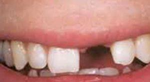 he2130 300x165 - درمان بی دندانی با بریج