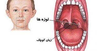 he3428 310x165 - علل بزرگ شدن و تورم زبان کوچک