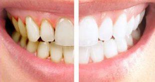 he3486 310x165 - آیا جرم گیری دندان را لق می کند