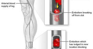 he3692 310x165 - بیماری آمبولی شریانی